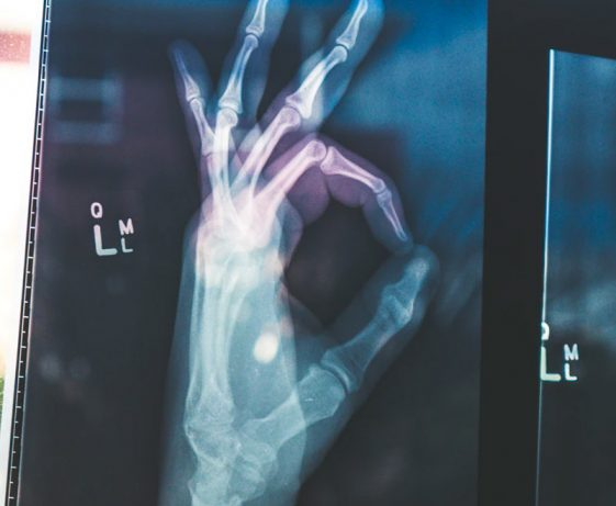 xray hand giving a-ok sign